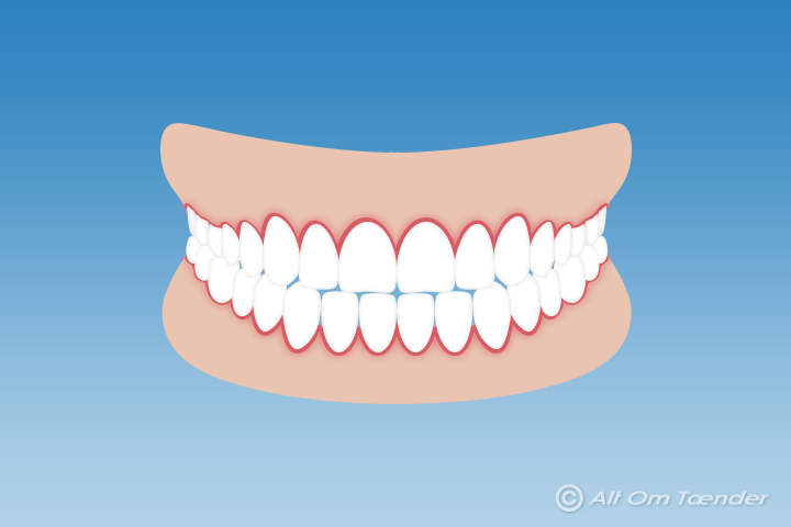 inflammation i tandköttet gravid