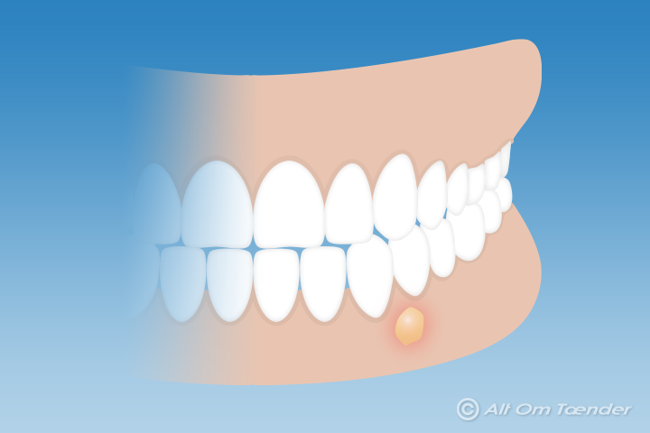 inflammation i tandköttet behandling